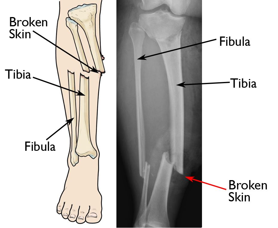 Infections After Fracture - Causes and Treatment - OrthoInfo
