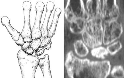 Kienböck's disease stage 4
