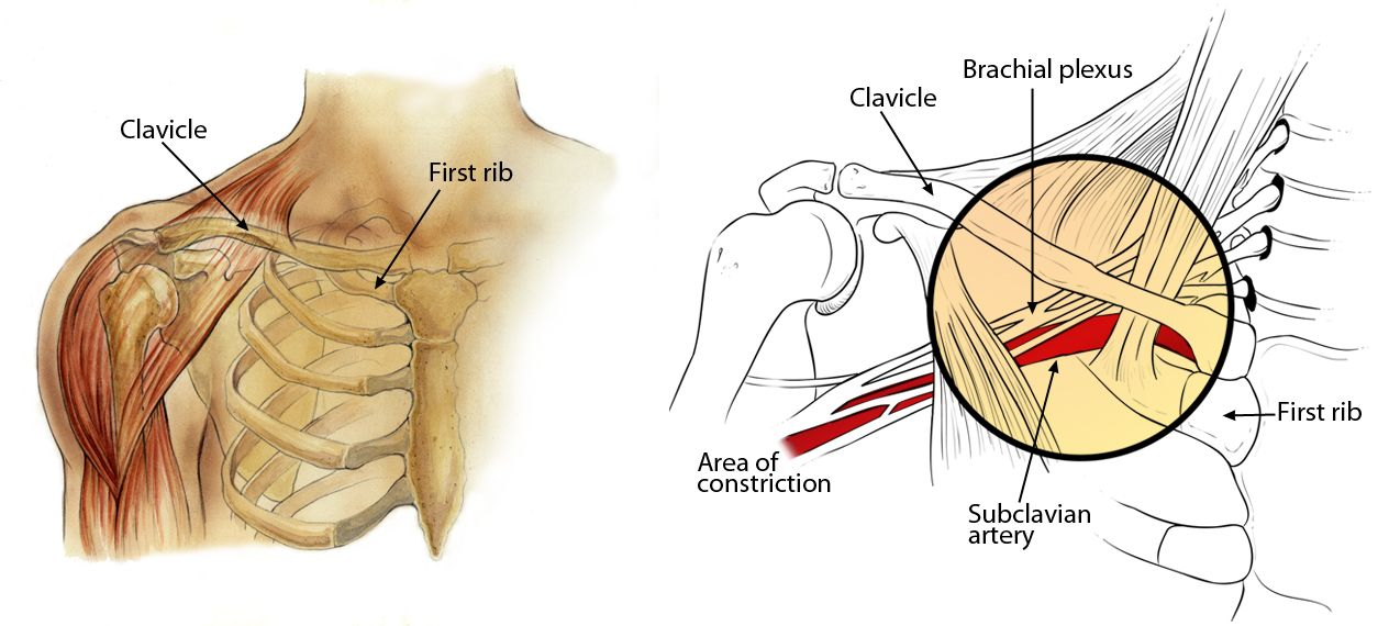 Thoracic Outlet Syndrome Orthoinfo Aaos