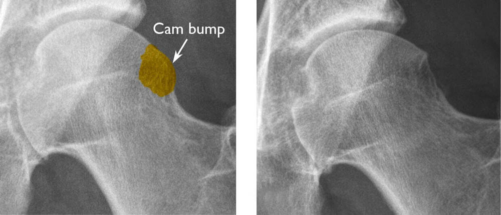 (Left) A cam bump on the femoral head. (Right) After the bump has been shaved down during surgery.