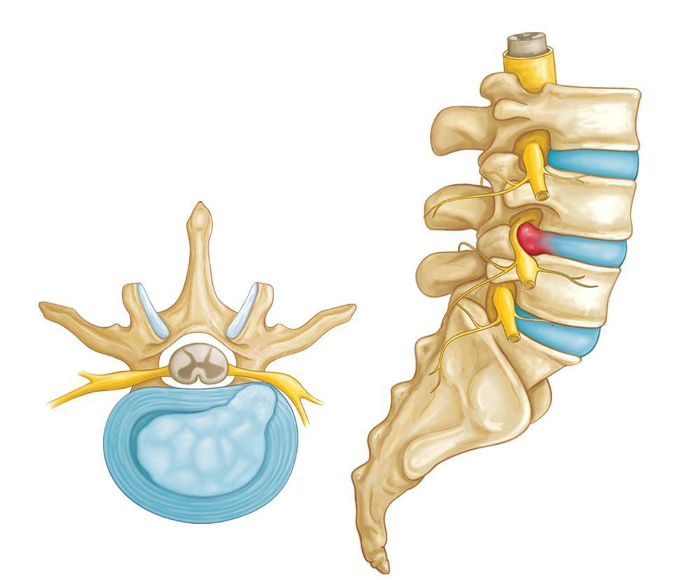 Herniated Back image