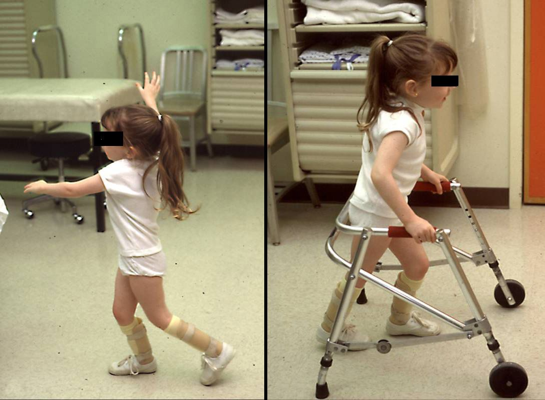 Young girl with cerebral palsy
