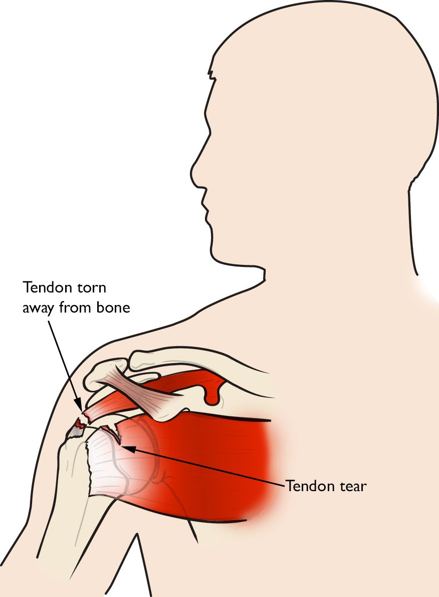 Illustration of a rotator cuff tendon torn away from bone