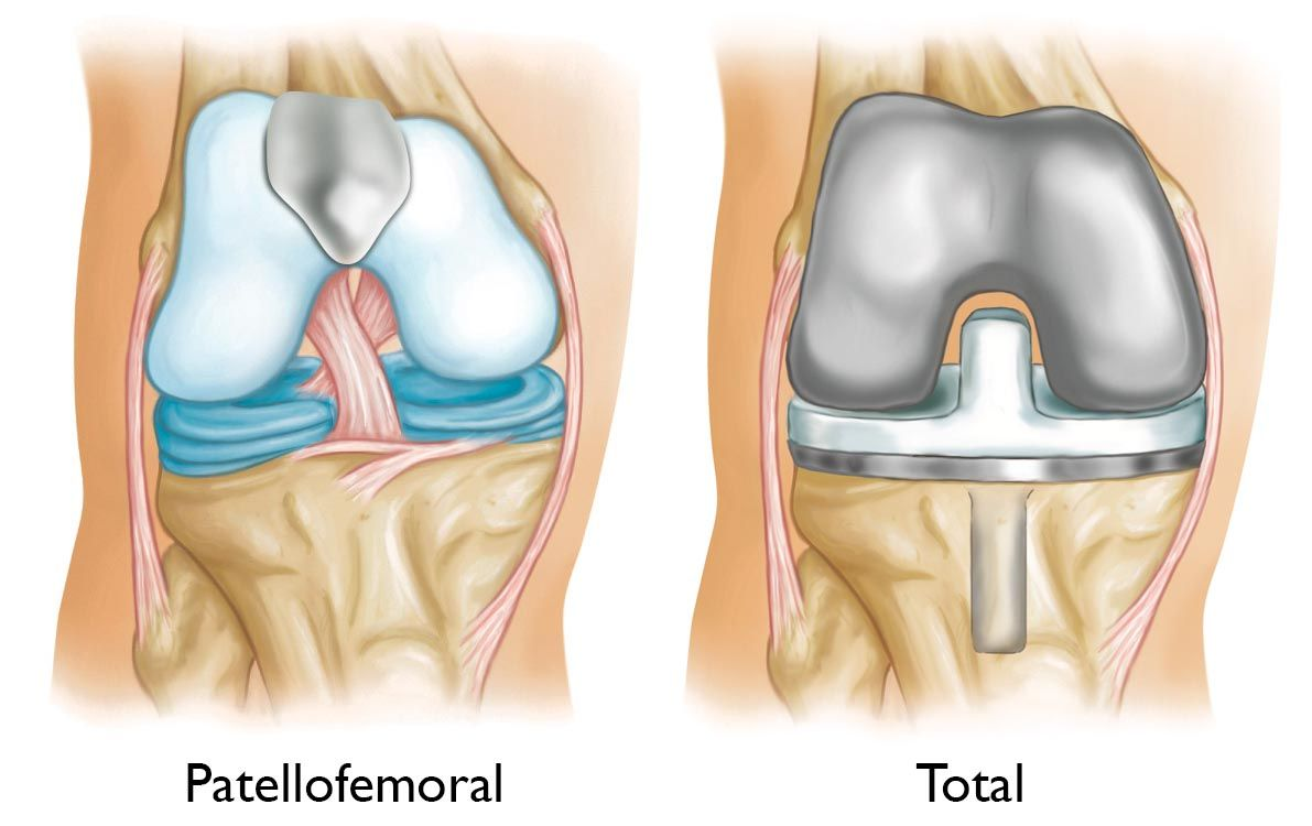 Patellofemoral replacement and total knee replacement
