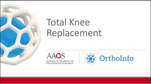 Total Knee Replacement - OrthoInfo - AAOS