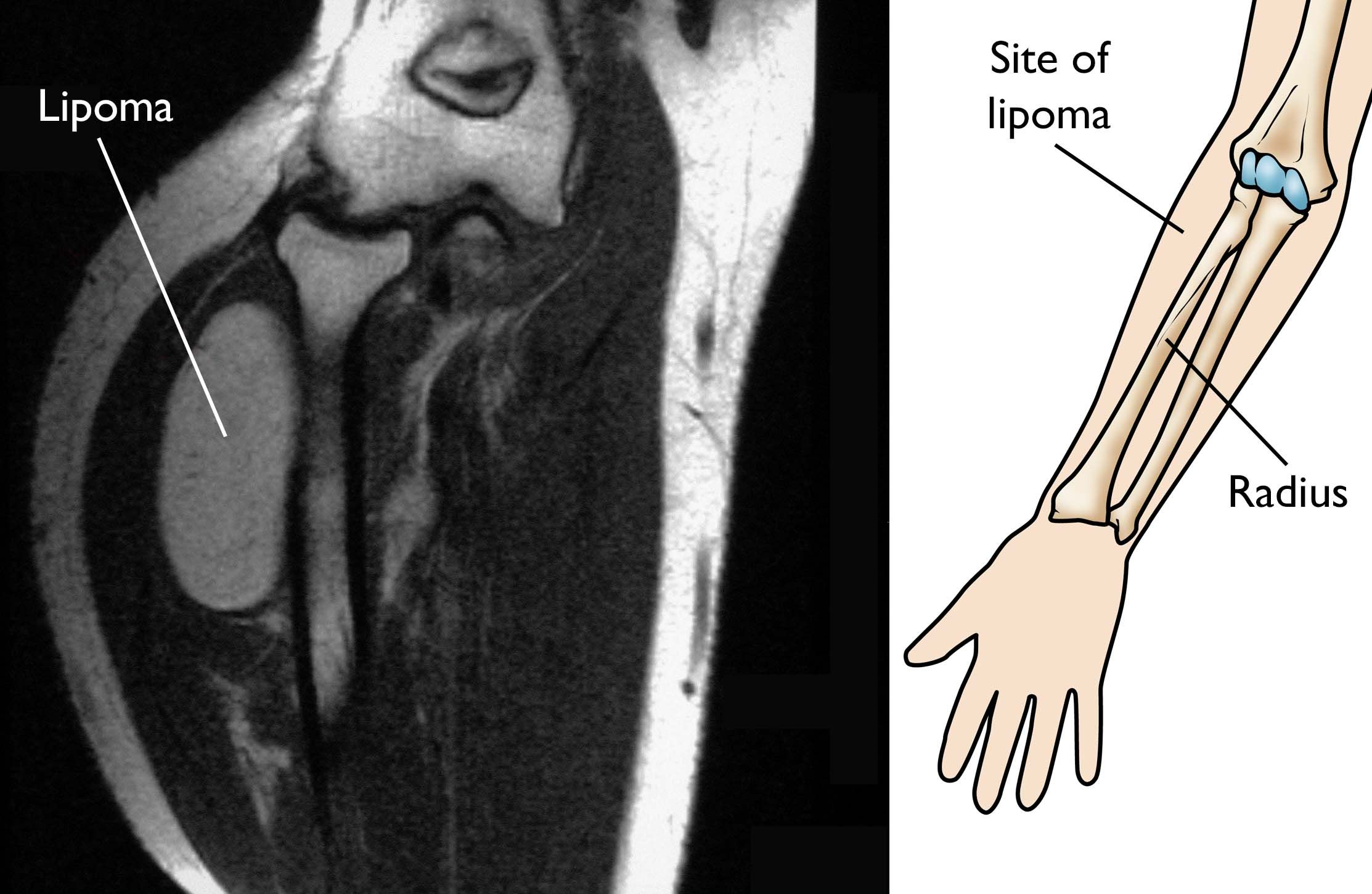 MRI of lipoma near elbow