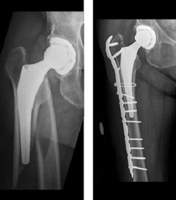 x-ray of periprosthetic hip fracture
