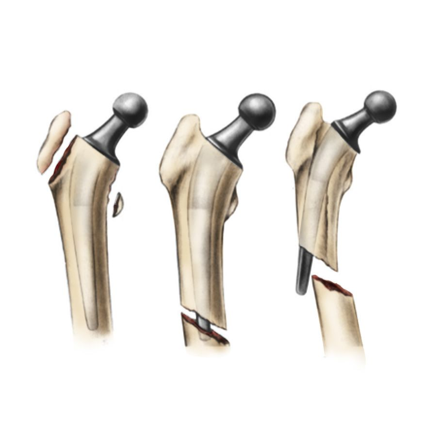 how bone can break around a total hip replacement
