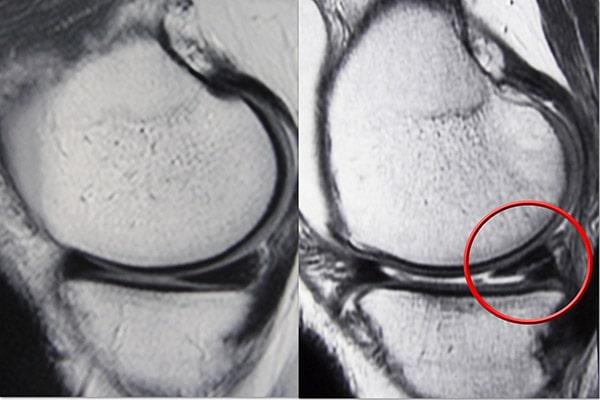 normal meniscus and meniscus tear