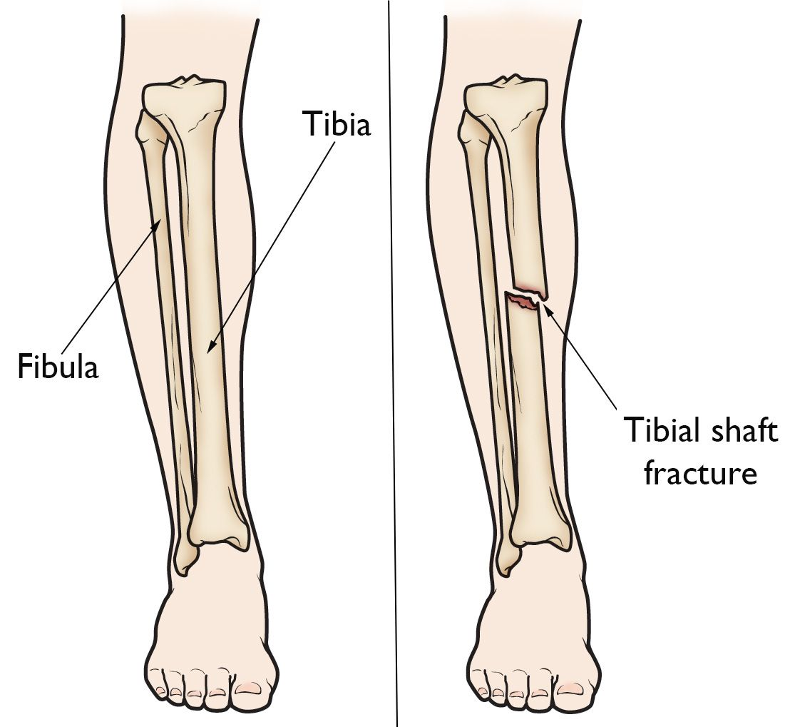 Tibia (Shinbone) Shaft Fractures - OrthoInfo - AAOS