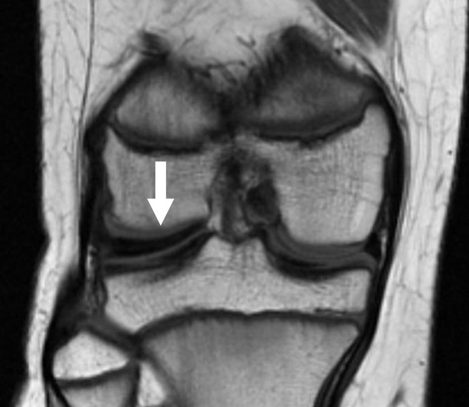 MRI of discoid meniscus