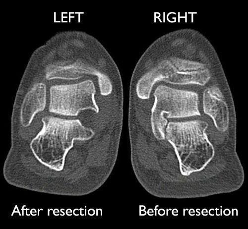 x-ray of resection for tarsal coaltion