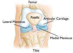 Meniscal Transplant Surgery - OrthoInfo - AAOS