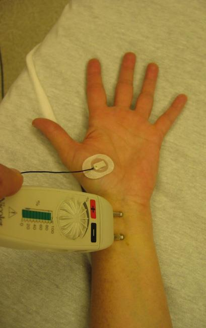 Electromyogram (EMG) test
