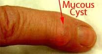 Mucous cyst on finger