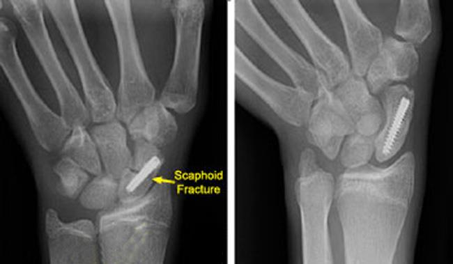 Internal fixation of scaphoid fracture