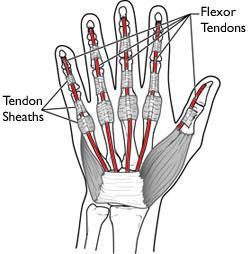 flexor tendon injuries orthoinfo aaos
