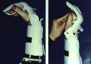 Splinting after surgery