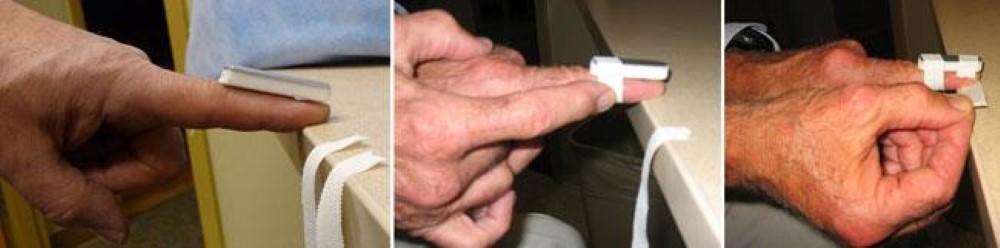 Applying a temporary finger splint