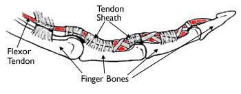 Tendon sheaths