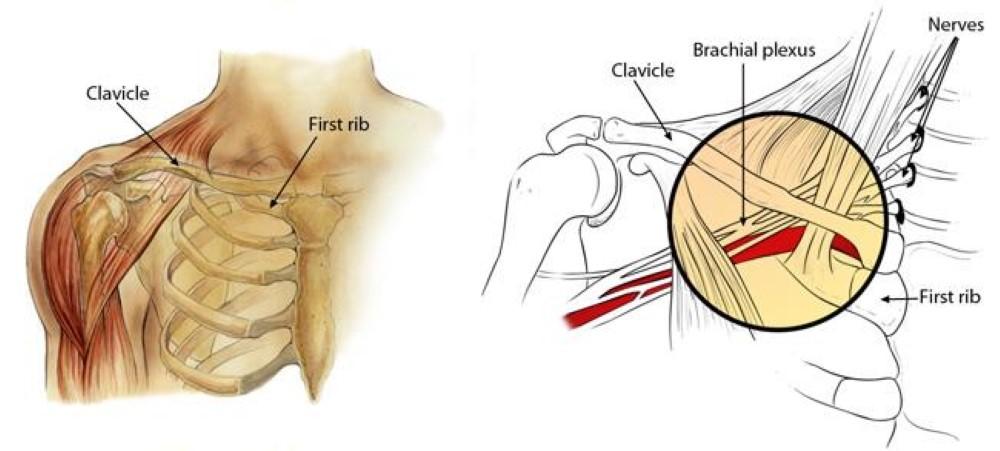 Burners and Stingers - OrthoInfo - AAOS