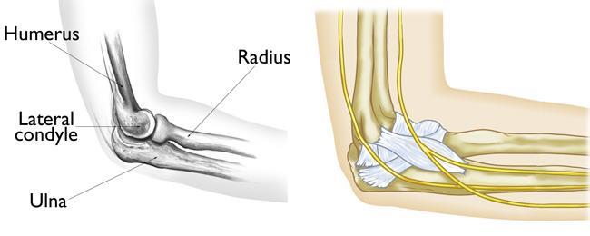 Fracturas de los codos en los niños (Elbow Fractures in Children ...