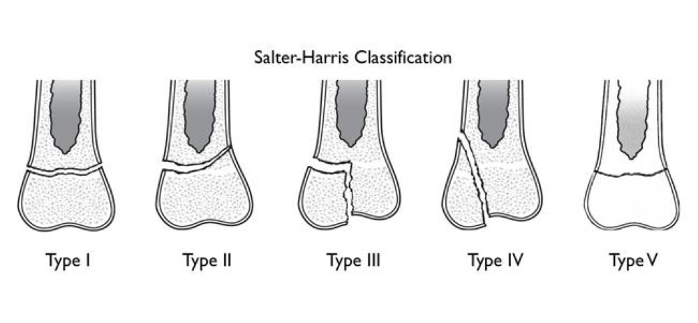 Salter-Harris classification of growth plate fractures.