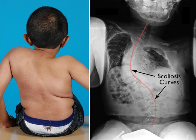 Image result for osteogenesis imperfecta