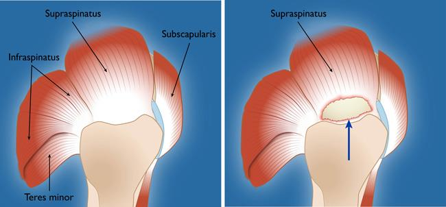 Rotator cuff tendons and a full-thickness tear in the supraspinatus tendon