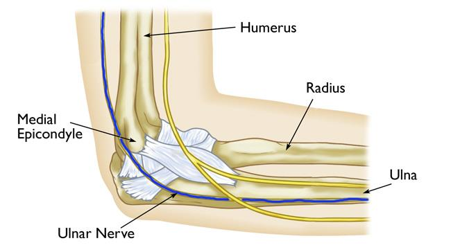 Ulnar Nerve Entrapment At The Elbow Cubital Tunnel Syndrome