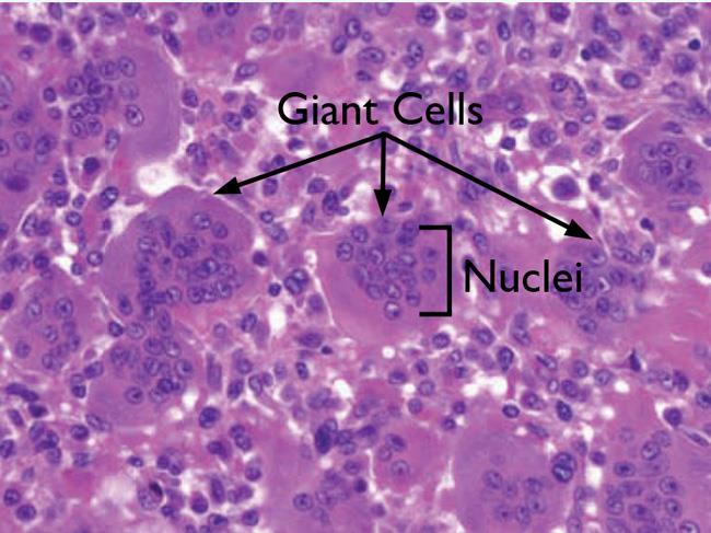 Microscope view of giant cell tumor