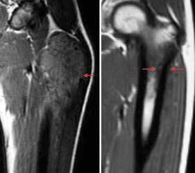 MRI of Ewing's sarcoma before and after chemotherapy