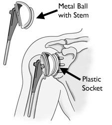 Total shoulder joint replacement