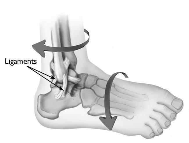 Kết quả hình ảnh cho Sprain and muscle tension