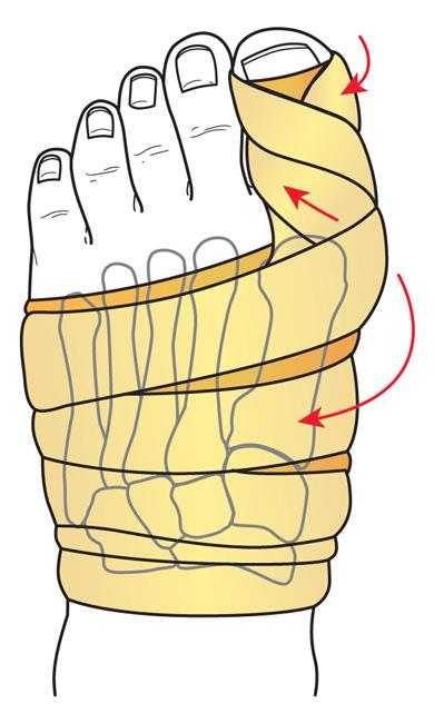 Dressing applied to foot after osteotomy