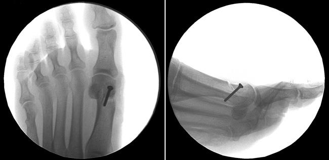Foot x-rays showing a bunion corrected with osteotomy
