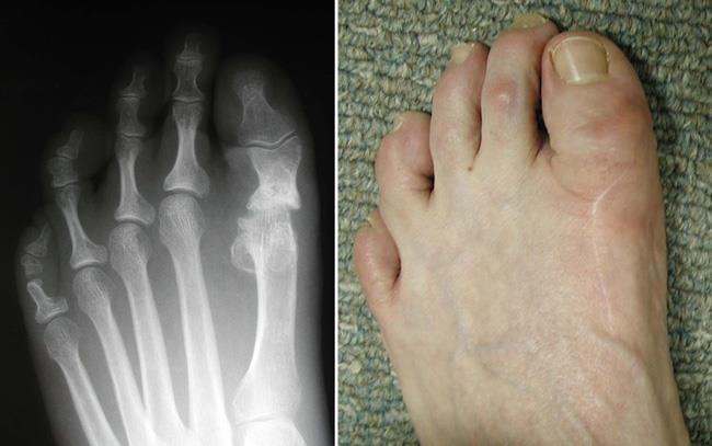 Bunion Surgery - OrthoInfo - AAOS