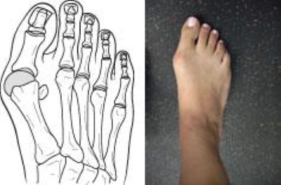 Tight Shoes And Foot Problems Orthoinfo Aaos