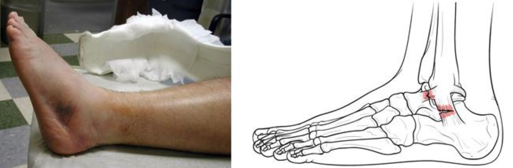 Sprained Ankle Orthoinfo Aaos