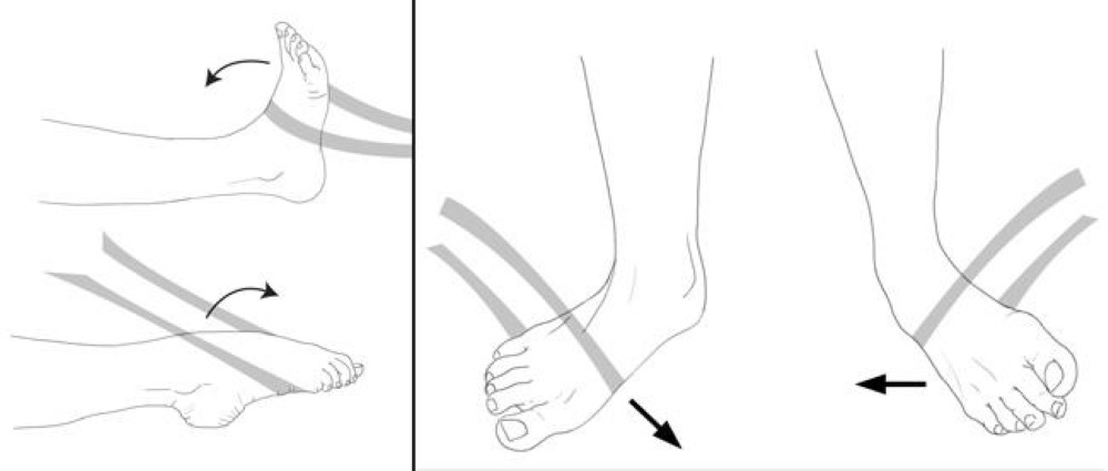 Resistance exercises after ankle sprain