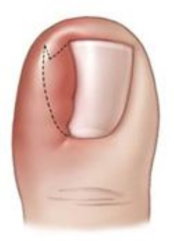 Ingrown Toenail - OrthoInfo - AAOS