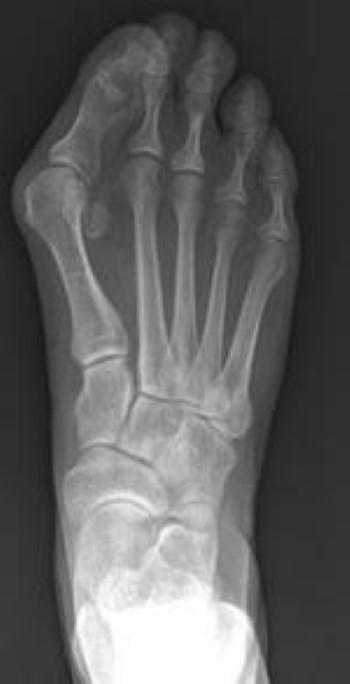 X-ray of bunion