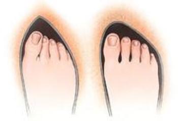 Improper and proper toe box