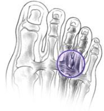 Morton's Neuroma surgery alternatives