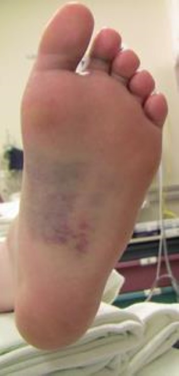 Bruising on bottom of foot