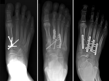 Internal fixation of Lisfranc injuries
