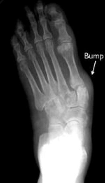 Rheumatoid Arthritis Of The Foot And Ankle Orthoinfo Aaos