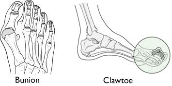 Illustration of bunion and claw toe