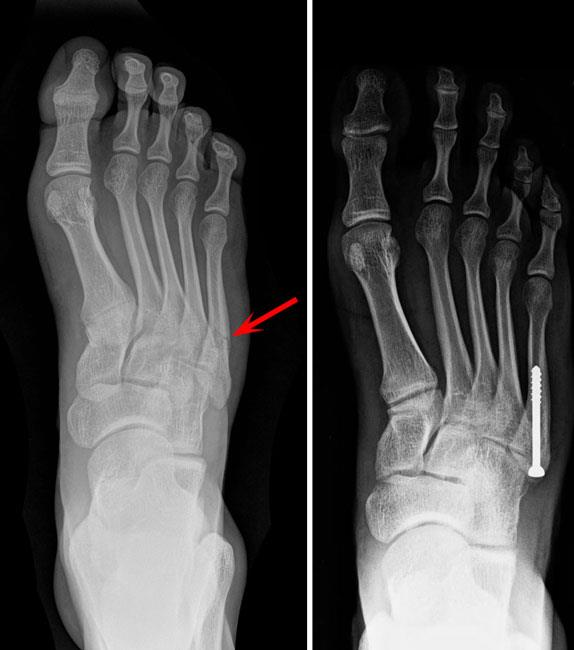 Toe And Forefoot Fractures Orthoinfo Aaos