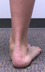 Photo of flat feet